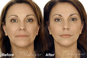 before and after dermal fillers in Houston Restylane treatment