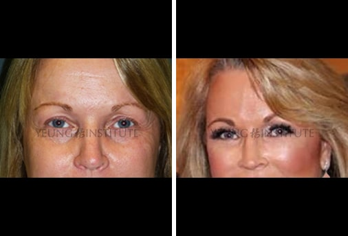 Facial Fat Grafting | Before | Patient 10