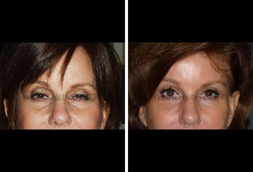 Facial Fat Grafting | Before | Patient 29