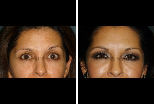 Facial Fat Grafting | Before | Patient 43