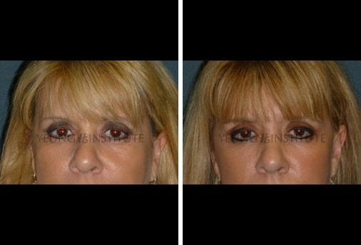 Facial Fat Grafting | Before | Patient 45
