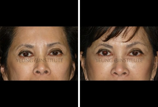 Facial Fat Grafting | Before | Patient 57