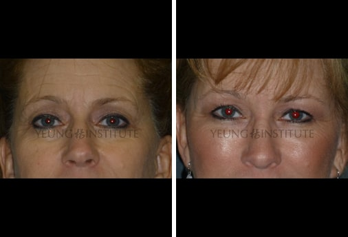 Facial Fat Grafting | Before | Patient 65