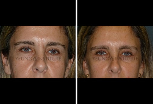 Facial Fat Grafting | Before | Patient 76