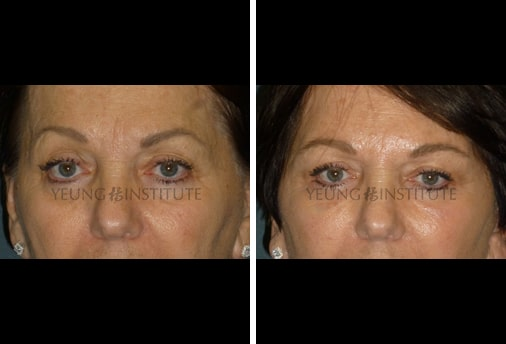 Facial Fat Grafting | Before | Patient 90